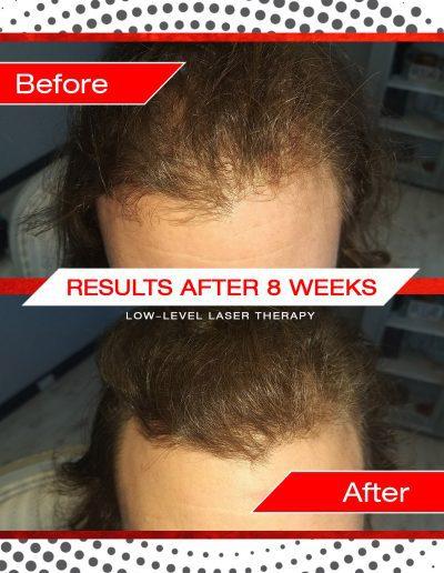 Laser Hair Treatment